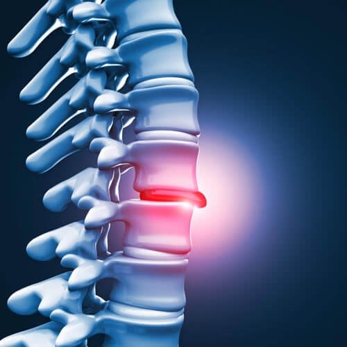 How to Find the Right Herniated Disc Treatment