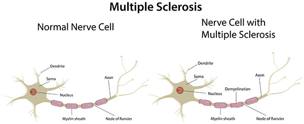 Chiropractic Care for Multiple Sclerosis