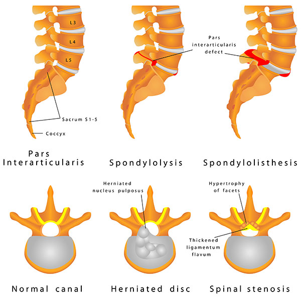 Chiropractic Care for Spondylolisthesis